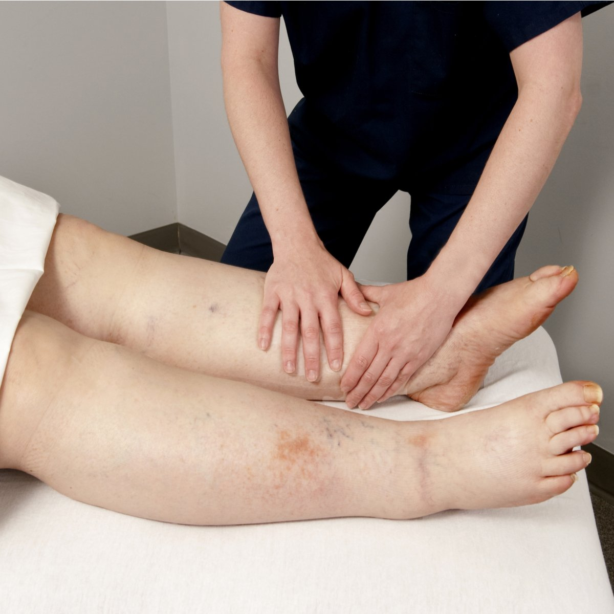 How Can Physical Therapy Help to Treat Lymphedema? featured image